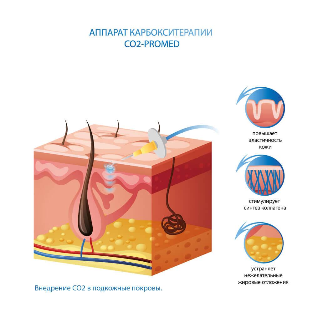 Аппарат карбокситерапии CO2-ProMed