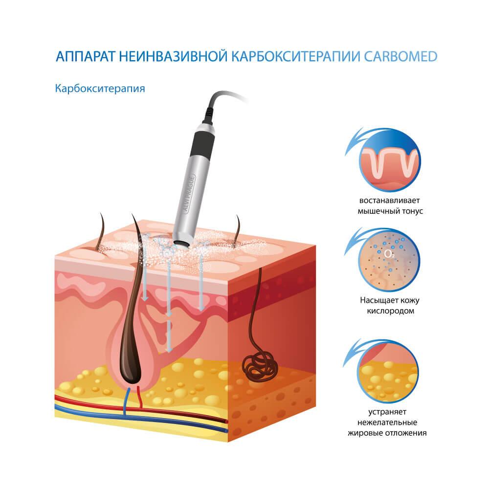 Аппарат для карбокситерапии CarboMED