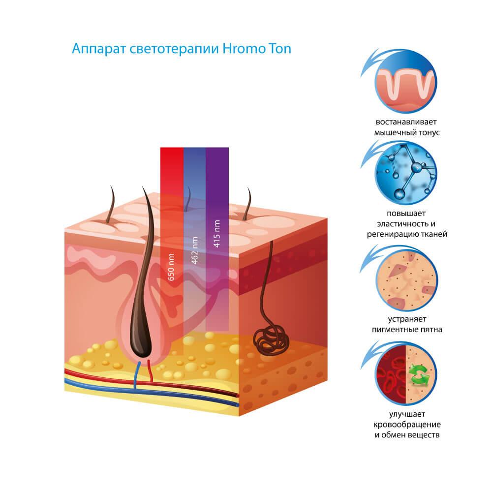Аппарат светотерапии HromoTon