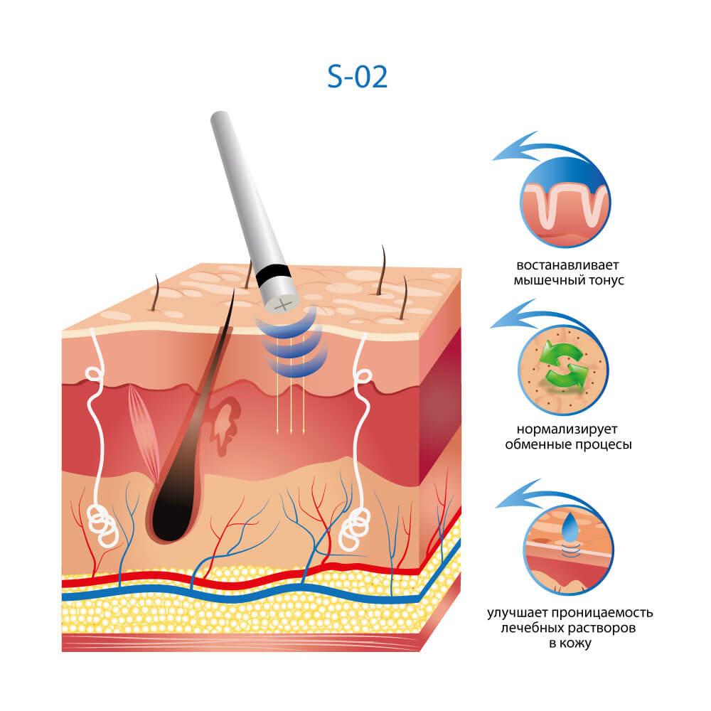 Аппарат безинъекционной мезотерапии с функцией УЗ-скрабера S-02