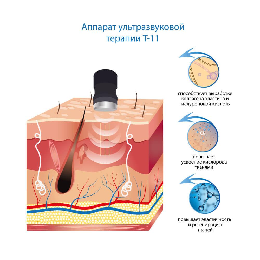 Аппарат ультразвуковой терапии T-11