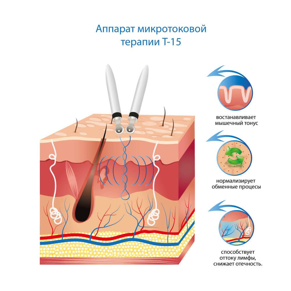 Аппарат микротоковой терапии T-15