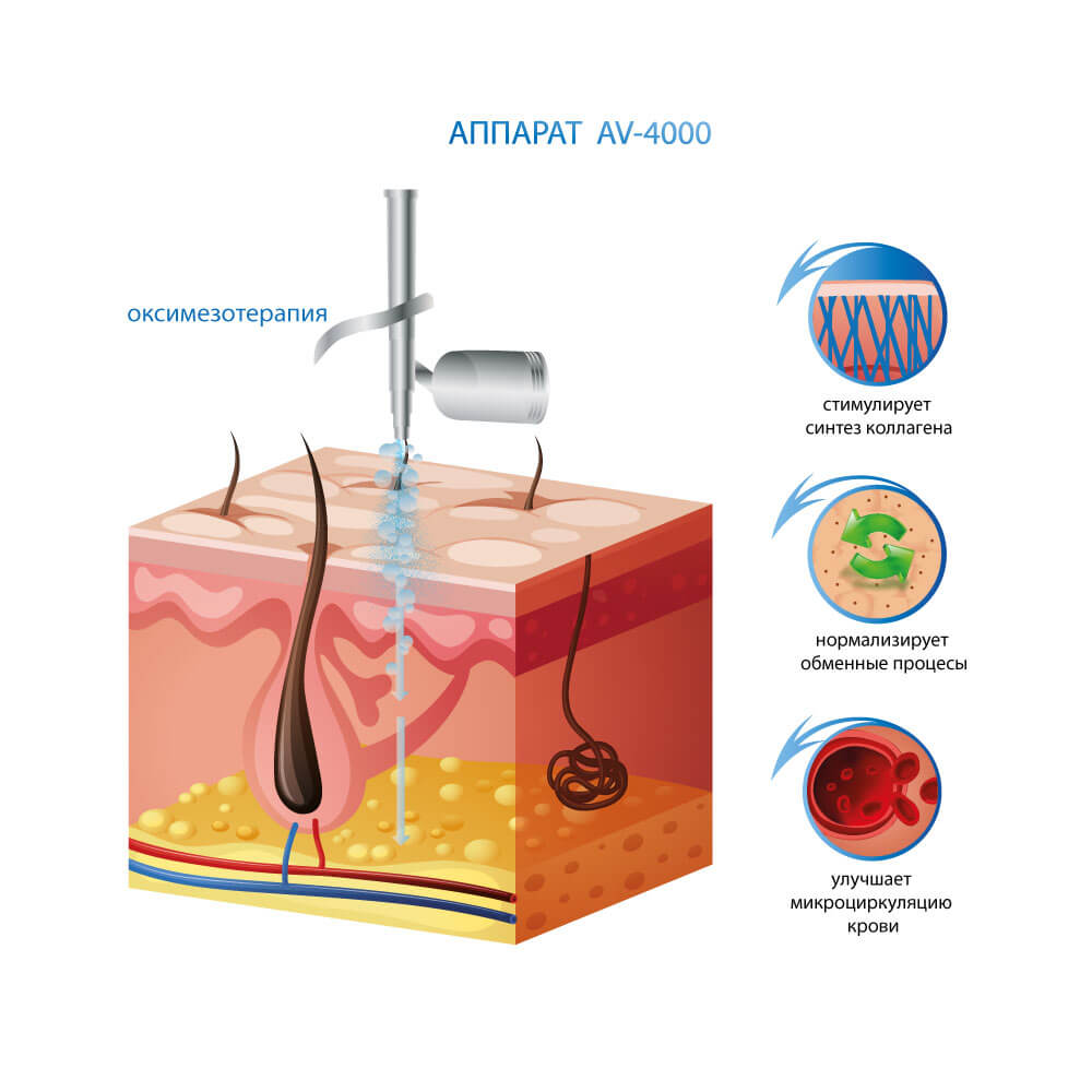 Аппарат кислородной терапии и газожидкостного пилинга AV-4000