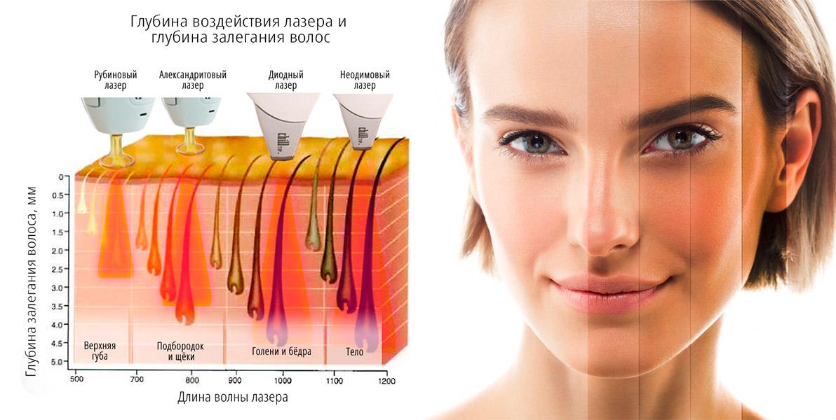 Для светлой кожи: александритовые или диодные лазеры.