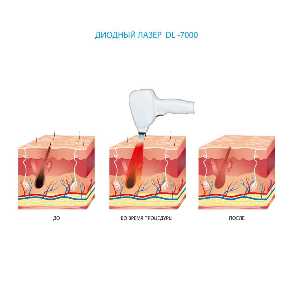 Диодный лазер для эпиляции волос Ultra Pulse DL-7000